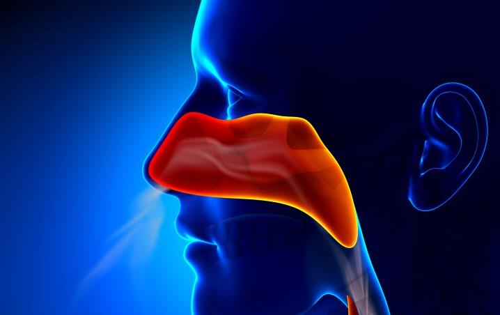 Polypose nasosinusienne : rhinosinusite chronique avec des polypes