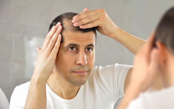 Concilio - Réduction de tonsure: chirurgie du cuir chevelu