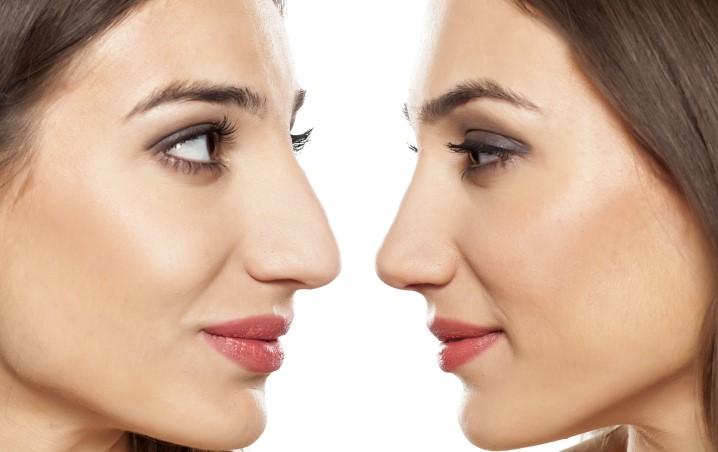 Concilio - Rhinoplastie: chirurgie du nez