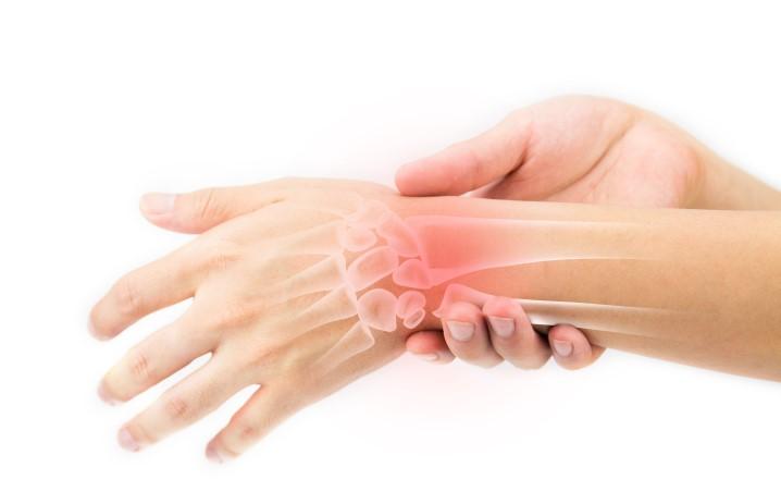 Concilio - Syndrome du canal carpien : compression du nerf médian